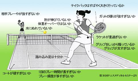 テニス肘発症の危険因子