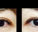 眼瞼下垂の主婦  R.K  40才  女性
