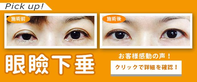 ピックアップ眼瞼下垂