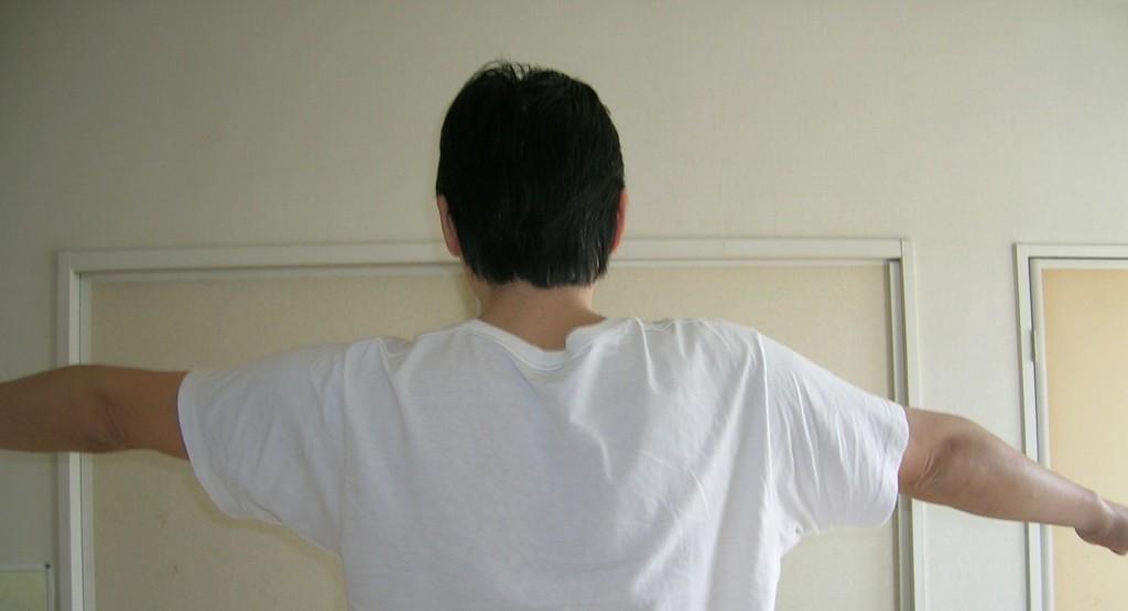 五十肩の正しい治療方法