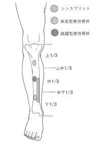 シンスプリントおよび疲労骨折の疼痛部位