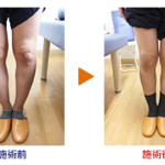 恵比寿鍼灸整骨院のO脚矯正